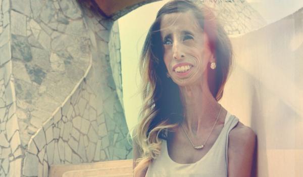 Going. | Waleczne serce: Lizzie Velásquez + spotkanie - Kino Wisła